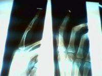 Finger x